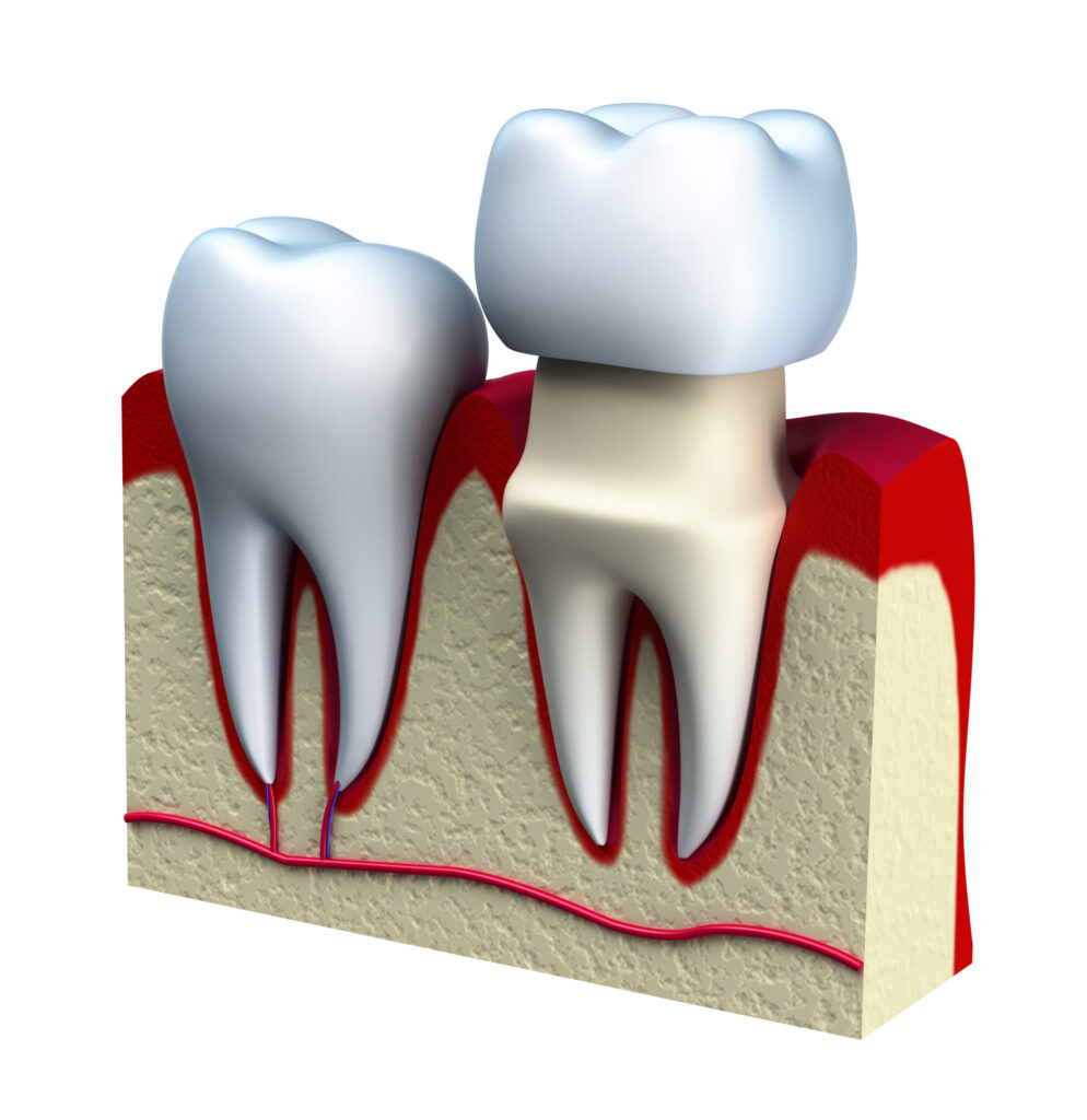 Illustration Of Crown Placed On Top Of Damaged Tooth